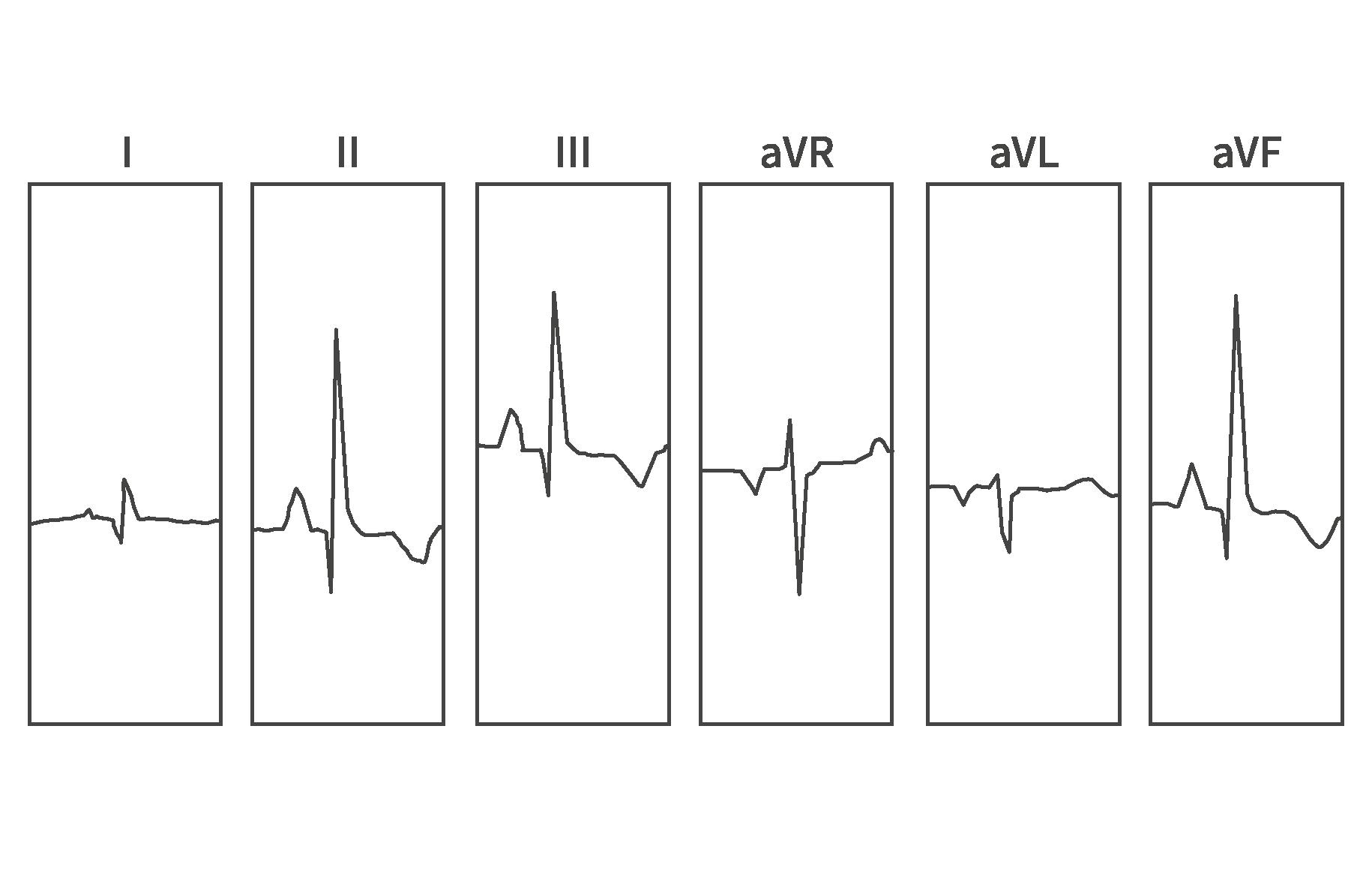 6-lead ECG